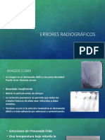 Errores radiográficos