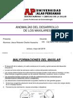 Anomalias Del Desarrollo de Los Maxilares