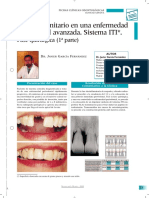 implante periodontitis avanzada