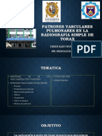 Patrones Vasculares Pulmonares en La Radiografia Simple de Torax