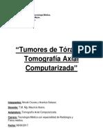 Tumores de Tórax TAC