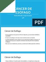 Cáncer de Esofago