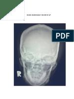 Kritisi Dan Evaluasi Cranium Ap_kelompok 5