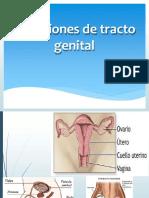Infecciones de Vias Genitales