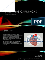9na Sesion Arritmias Cardiacas