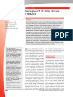 Management of Distal Clavicle Fractures