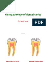 Caries Histopathology