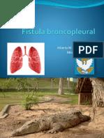 Fístula broncopleural