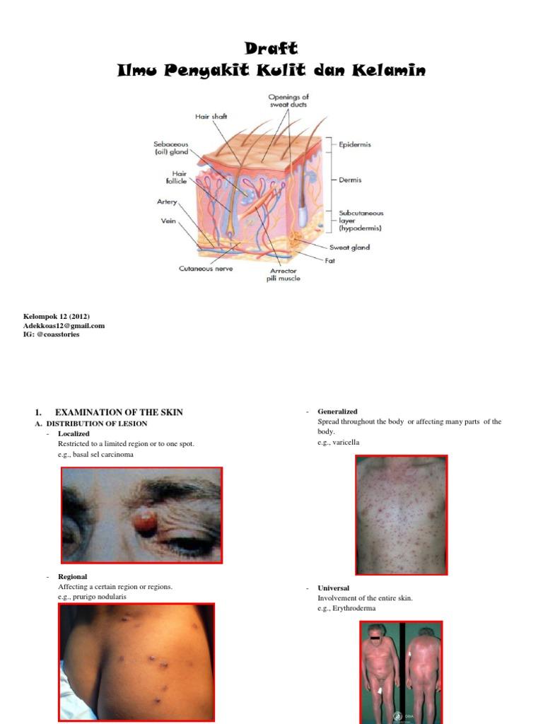 Hemolytikus prosztatitis A prosztatitis első jele