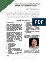 Nefropatia Lupica