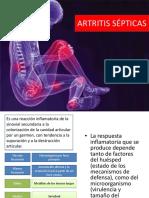 artritis infecciosas 123
