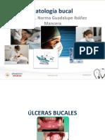 Ulceras-Bucales
