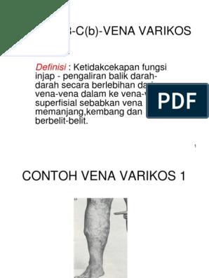 Afecțiuni circulatorii | cvartetbucuresti.ro