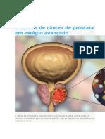 12 sinais de câncer de próstata em estágio avançado.docx