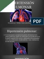 Hipertension pulmonar ............1.pptx