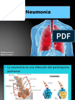 neumona-170213180803