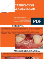 CICATRIZACIÓN ÓSEA ALVEOLAR.pdf