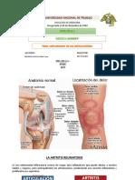 artritis remautoidea