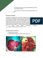 Placenta Accesoria