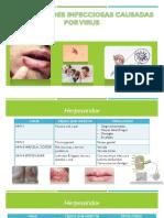 Enfermedades Infecciosas Causadas Por Virus