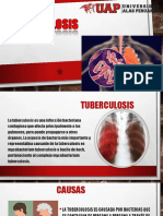 Tuberculosis Convertido