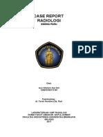 Case Report Edem Pulmo Tn.H(97-2003)