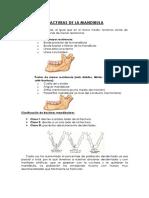 Clase 1 Fractura Mandibular