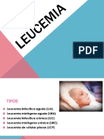 leucemia-140515123027-phpapp01