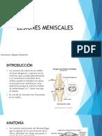 Lesiones Meniscales Qx