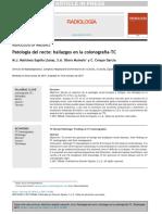 Patología del recto hallazgos en la colonografía-TC.pdf