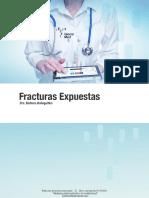 fx expuestas