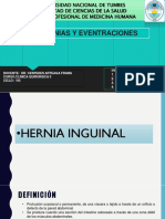 4. HERNIAS INGUINALES GRUPO 4.pptx
