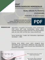 REFERAT HIDROSEFALUS FIX.pptx