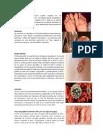 15 TIPOS DE ENFERMEDADES.docx