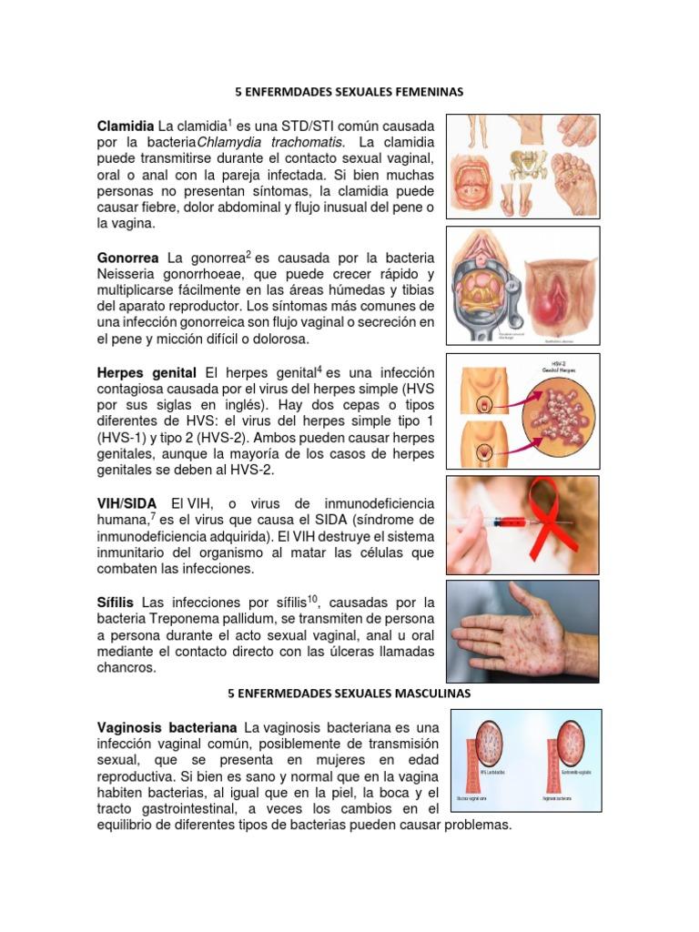 infección por std
