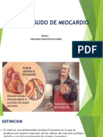 INFARTO AGUDO DE MIOCARDIO.pptx
