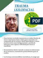 Trauma Maxilofacial 1