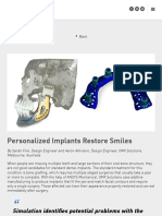 Personalized Implants Restore Smiles - EDRMedeso