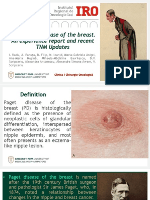 cancer mamar paget