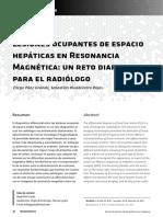 lesiones hepaticas hepaticas_esp.pdf