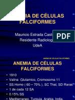 Anemia Cels Falciformes