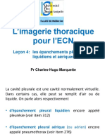 aEpanchements_pleuraux1