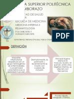 Polimiositis 2