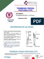 trombosis venosa profunda