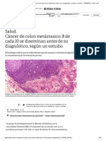 Cáncer de colon metástasico_ 8 de cada 10 se diseminan antes de su diagnóstico, según un estudio - 18_06_2019 - Clarín.com.pdf