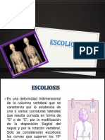 137657054 Escoliosis Exposicion Ppt