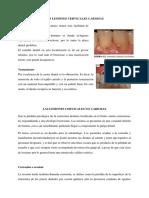 Las Lesiones Cervicales Cariosas