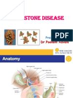 gall stone.ppt