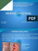 Hernia Inguinal[1]