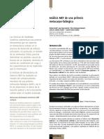 Dialnet-AnalisisMEFDeUnaProtesisMetacarpofalangica-3064158